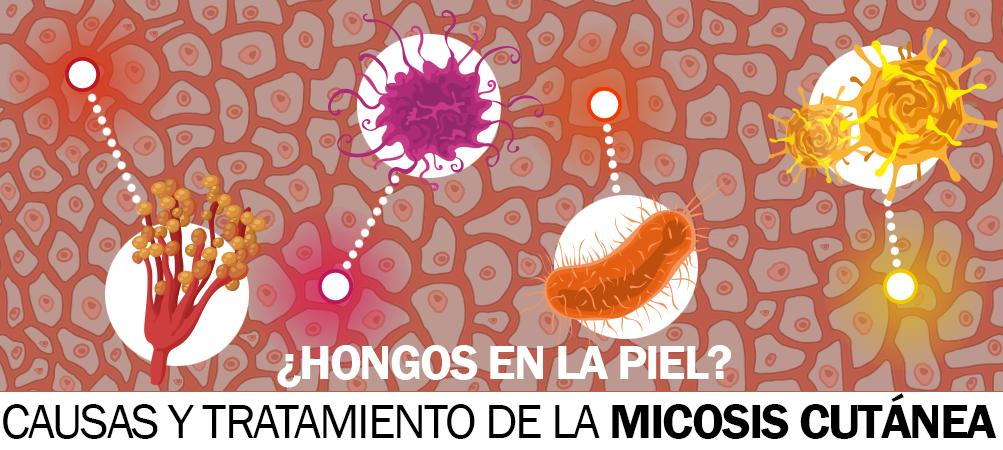 Fotos de micosis en la piel