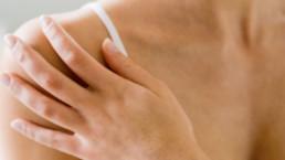 Psoriasis tratamiento natural