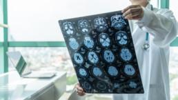Médico mirando una radiografía del cerebro